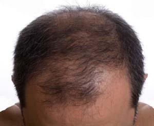 Выпадение волос лекарства от выпадения